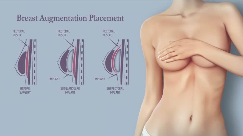 breast augmentation diagram