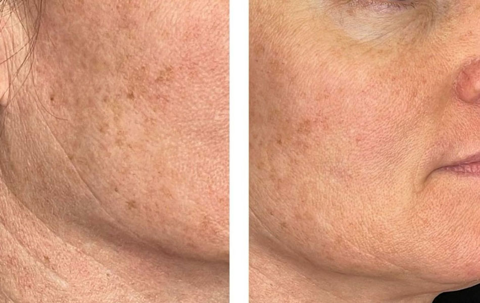 RF Microneedling before & after