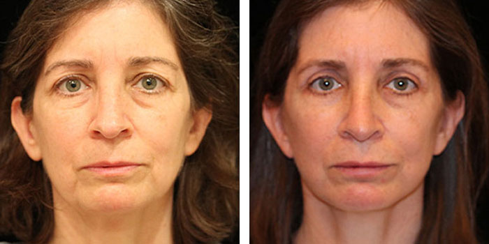 facelift / neck lift before & after