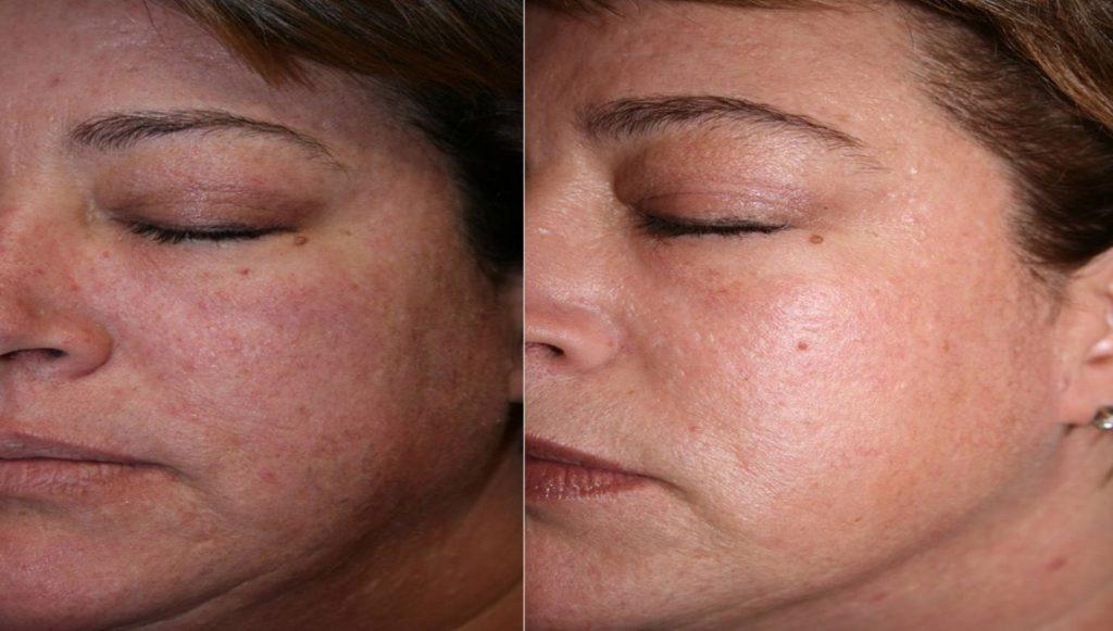 laser skin resurfacing patient